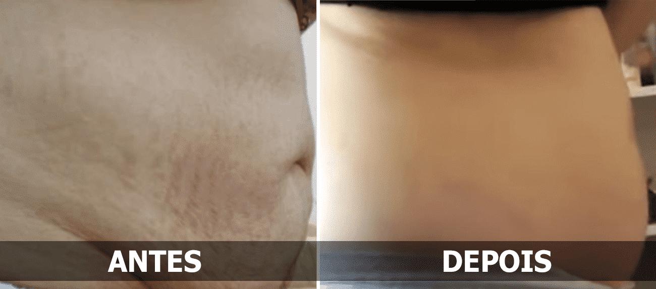 Flacidez da barriga (resultados após 1 mês)