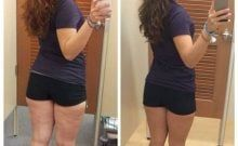 Resultado da Colastrina na perna