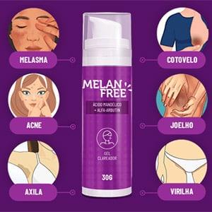 melan Free - creme para eliminar as manchas da pele. Em pouco tempo de uso, ele irá acabar de vez com qualquer tipo de pinta ou mancha em sua pele. De forma segura e sem causar danos ao seu organismo.